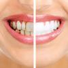 Dentes Amarelados: Pode ser alguma doença?