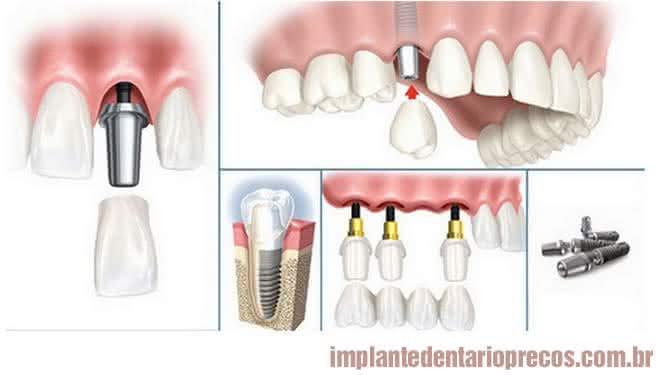 Implante Dentário Dói?
