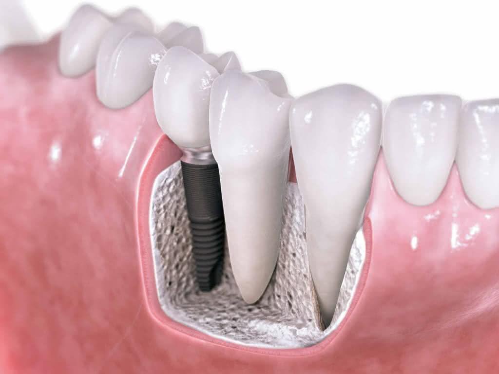 Implante dentário como é feito