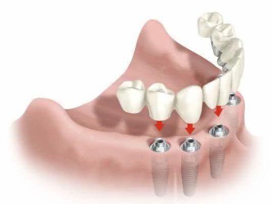 Resultado de imagem para implante dentario