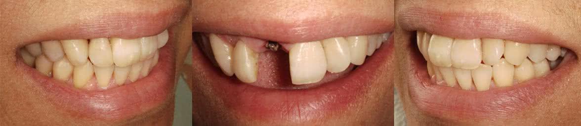 implante_dentario_londrina21