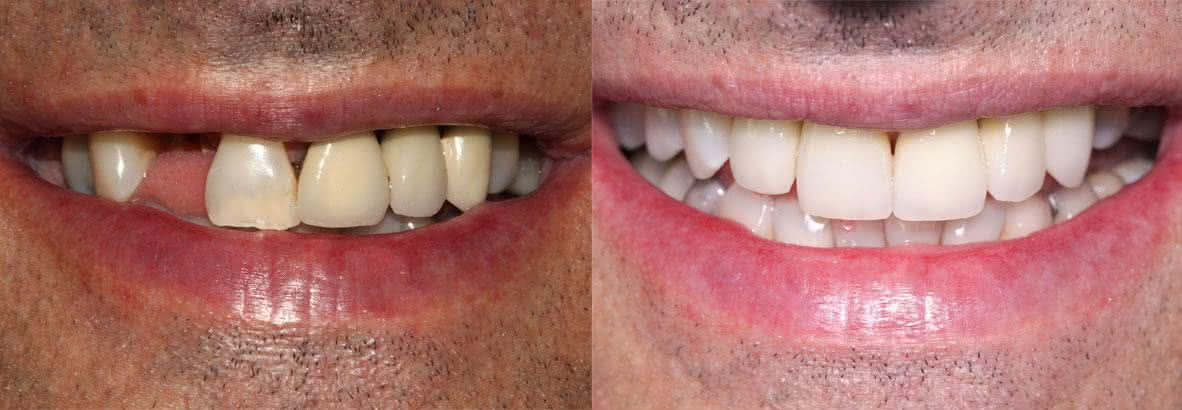 implante_dentario_londrina4