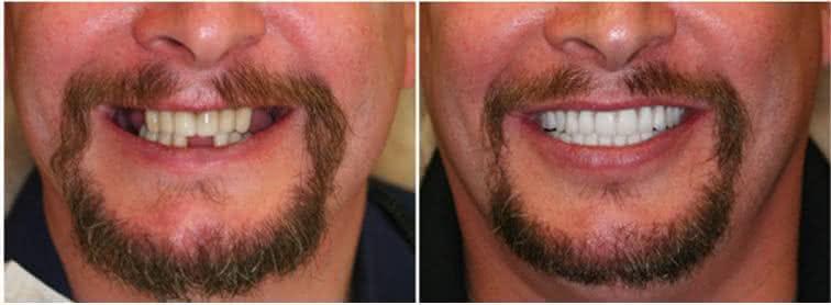 Implante antes e depois 1