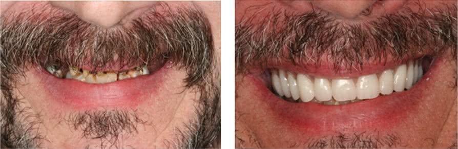 Implante antes e depois 2