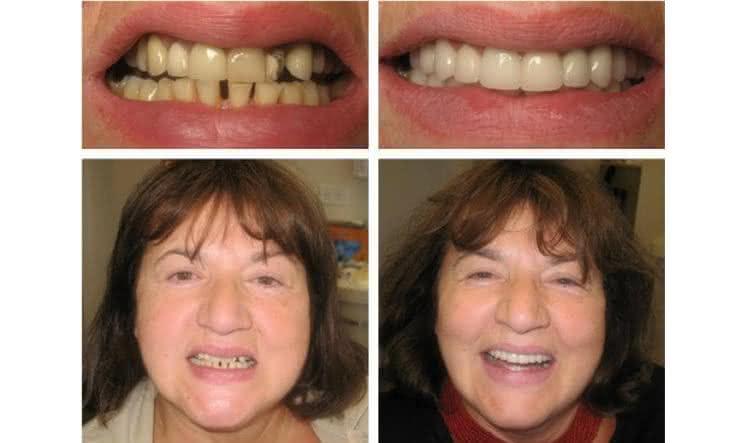 Implante antes e depois 3