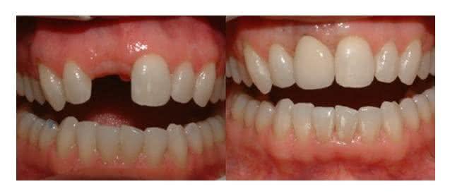 Implante antes e depois 4