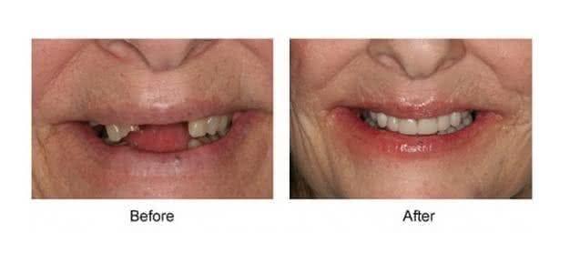 Implante antes e depois 5