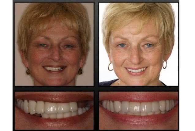 Implante antes e depois 6