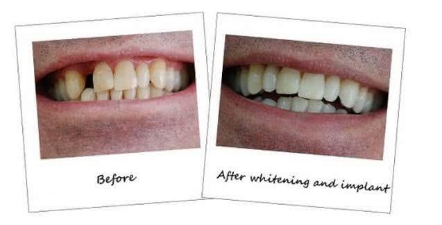 Implante antes e depois 7