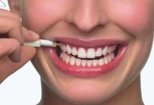 implante dentário quebrado