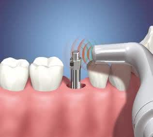 Implante Dentário Personalizado