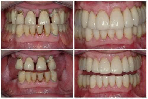 e3d8dab3c41f Implante Dentário - Fotos de Antes e Depois