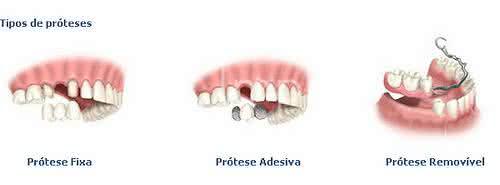 Tipos de Protese Dentária