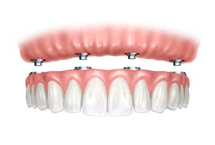 Protese Dentária Total
