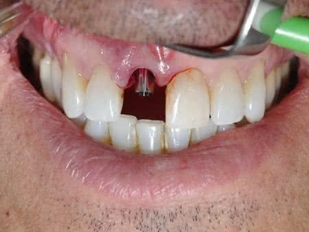 Fases do Implante Dentário