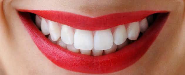 Implante Dentário Perfeito