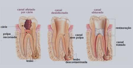 Pin de sac em Dr Edi Prevenção Odontológica | …