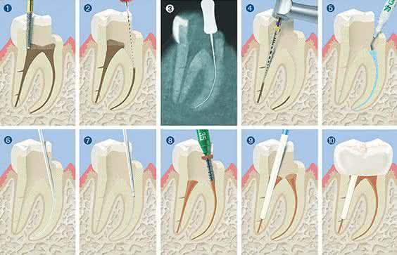 Fazer Canal Dentário Dói?