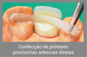 Protese Dentária Adesiva