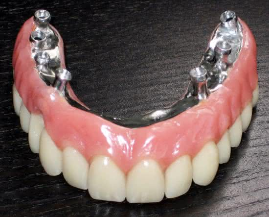 Implante dentario inferior