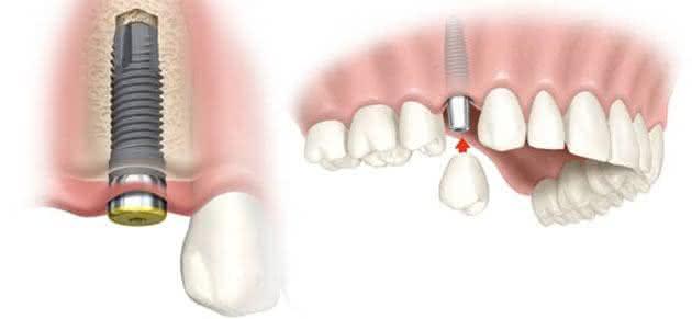 Alternativas de Implante