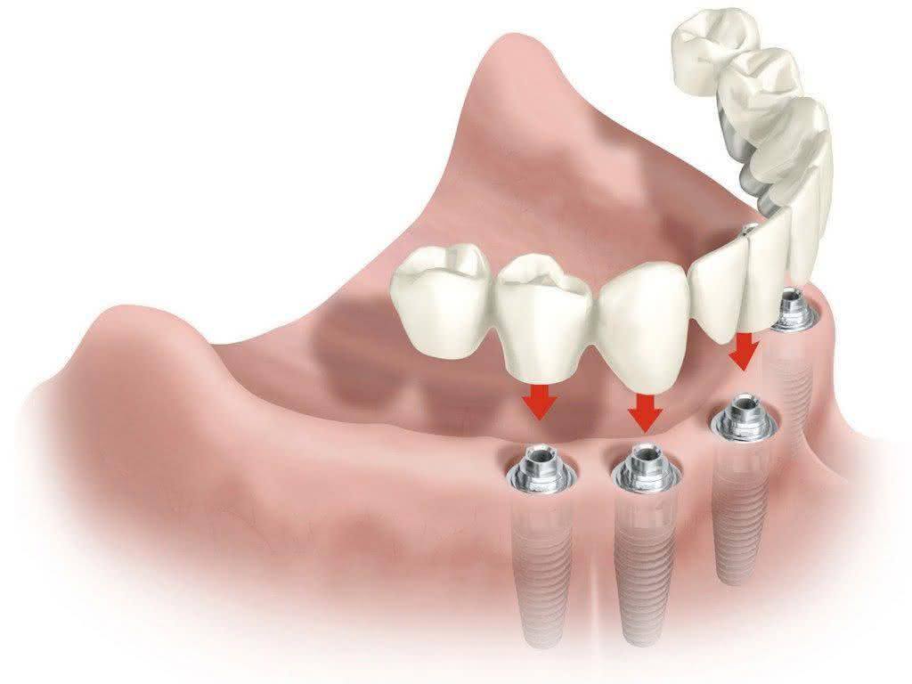 зубные имплантанты какие лучше получить субсидию открытие