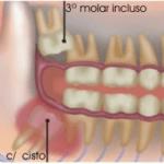 O que são dentes do siso?