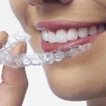 Moldes para Clareamento de Dentes