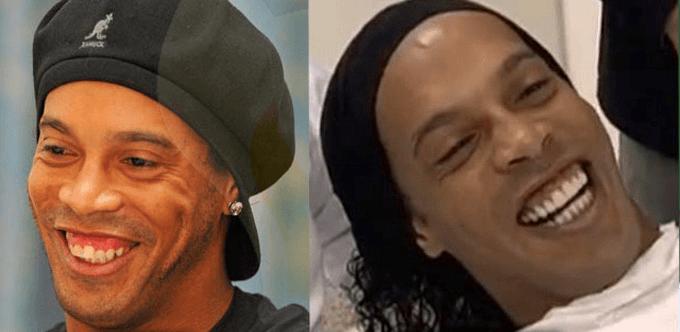 O novo Sorriso de Ronaldinho Gaúcho