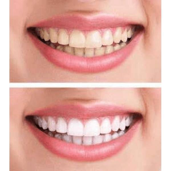 Tipos de Clareamento Dental