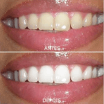 Clareamento Dental Caseiro