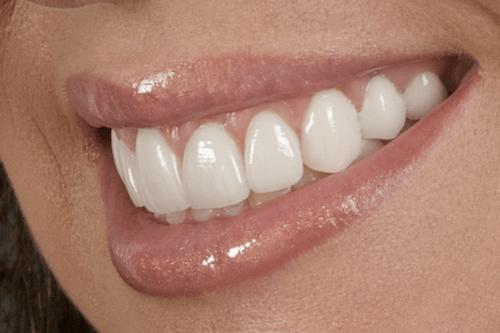 Protese Dentaria Fixa